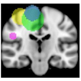 Diffusion tensor imaging scan