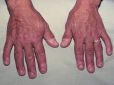 एक्रोमेगाली बीमारी से कैसे होता है शरीर प्रभावित, जानिए इसके उपचार के बारे में