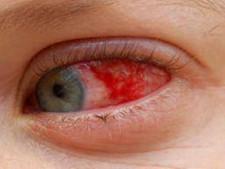 आंखों का रोग है यूवाइटिस, ये है लक्षण, कारण और इलाज