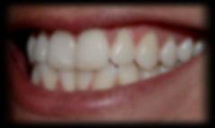 dentista odontologia estética em Londrina