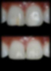 dentista odontologia estética em Londrina Dentes com defeitos de formação restaurados com resina.