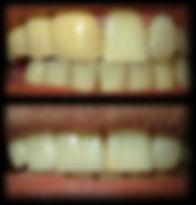 dentista odontologia estética em Londrina Prótese fixa antiga substituídas por prótese fixa metal-free.