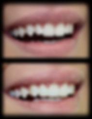 dentista odontologia estética em Londrina Caso trabalhado com resinas com fechamento do espaço e novo formato ao dente lateral.