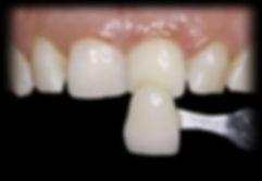 dentista odontologia estética em Londrina Clareamento interno de dentes