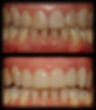 dentista odontologia estética em Londrina Facetas podem ser feitas também de resina, procedimento mais rápido e acessível que porcelana.
