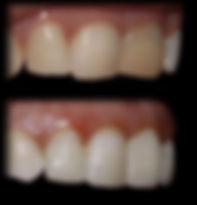 dentista odontologia estética em Londrina Neste caso foram combinados clareamento interno e total, seguido de aumento dos dentes com resina