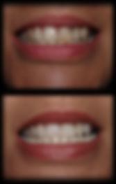 dentista odontologia estética em Londrina Caso realizado com clareamento total + interno, desgaste dos excessos e restaurações de resina.