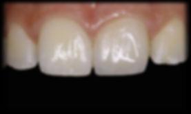 Restaurações em resina de fraturas dentes anteriores dentista odontologia estética em Londrina