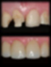 dentista odontologia estética em Londrina Restaurações de dentes fraturados e com restaurações deficientes.
