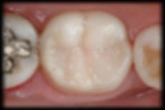 dentista odontologia estética em Londrina Restaurações de resina composta dentes posteriores