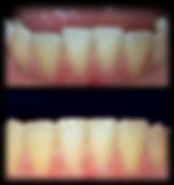 dentista odontologia estética em Londrina Dentes desnivelados podem ser trabalhados com desgaste, obtendo bom resultado estético.