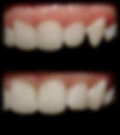 dentista odontologia estética em Londrina Trabalho em resina, corrigindo defeitos nos dentes naturais.