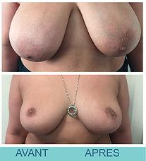 Réduction mammaire Docteur Pierre Passy16--AVANT-APRÈS.jpg