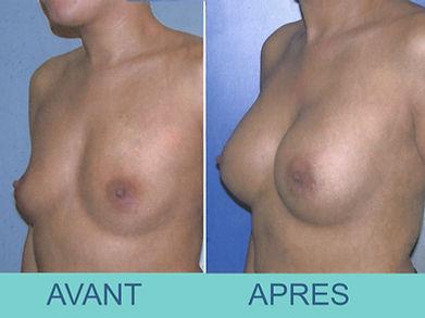 Prothèses mammaires retro-musculaires