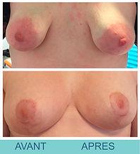 14- AVANT-APRÈS.jpg