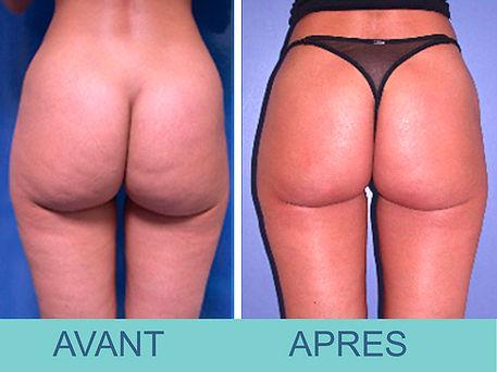 liposusion fesses et hanches- Docteur Pierre Passy