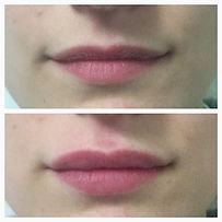 Injection d'acide Hyaluronique/ Docteur Pierre Passy /Natural Russian lips