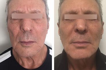 Lifting cervico facial( cou et visage) Docteur Pierre Passy