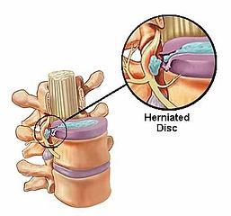 herniateddisccutaway.jpg