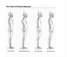 posture-problems1.jpg