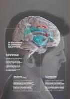 L'hypnose : elle transforme l'activité cérébrale et les perceptions