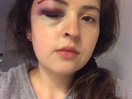 I Got Hit by a Car