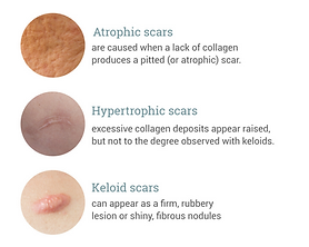 New website types of scars.png