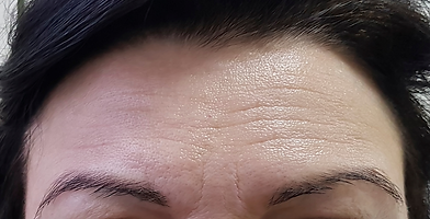 Botox avant.png