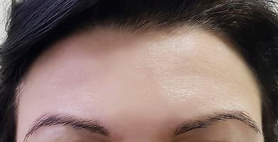 Botox après.png