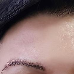 Botox%20apr%C3%A8s_edited.jpg