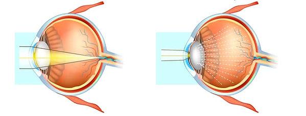 Effect van staar / cataract in het oog