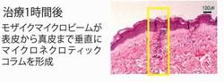 施術後の皮膚組織の変化
