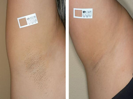 lumenis-before-after-axilla.jpg