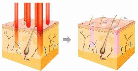 1.マイクロレーザービームによるフラクシュナル治療とは、