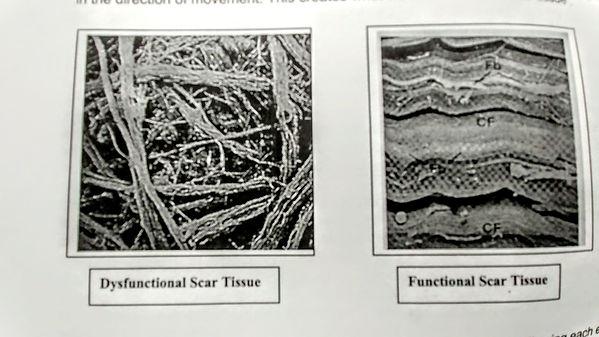 scar tissue.jpg