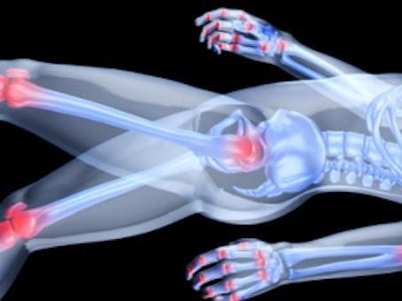 Arthritis Pain? Reflexology can help!