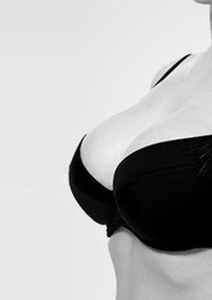 BreastAugmentationBeverlyHillsPhysicians