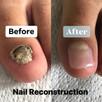 Nail Reconstruction