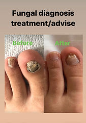 Fungal nail image.jpg