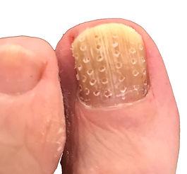 nail-fenestration.jpg
