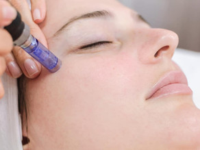 Microneedling is a MUST for Smooth Skin Lovers!