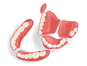 repair broken denture if snapped in half no job to small sydney denture clinic.