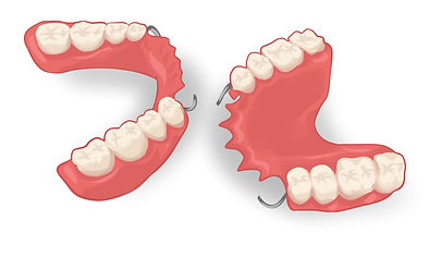 acrylic denturee for a perfect smile if you have no teeth ramsgate sydney denture clinic