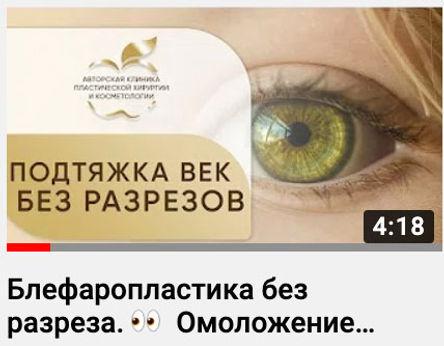 Видеоконсультация пластического хирурга по блефаропластике без разрезов Эфендиева Магомеда в Клинике Хромова.