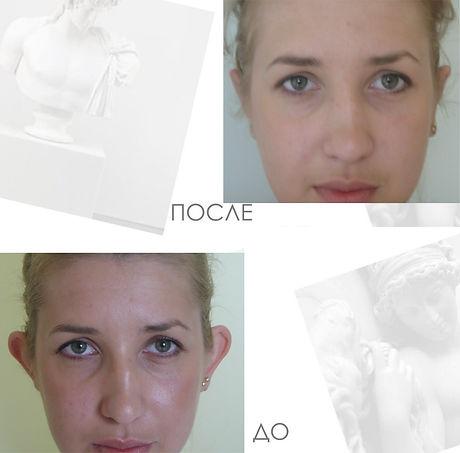 Результаты отопластики До и После в Клинике Хромова.