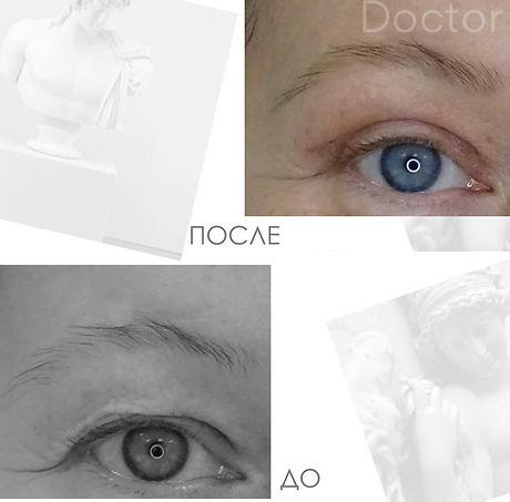Результаты блефаропластики фото До и После в Клинике Хромова.