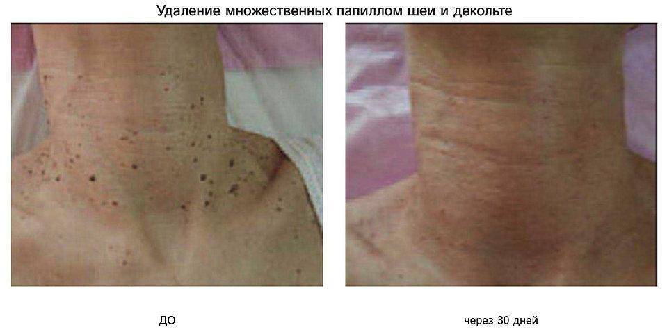 Радиоволновая хирургия Surgitron - удаление папиллом в Клинике Хромова.