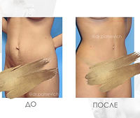 Фото До и После операции абдоминопластика.
