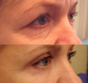 Результат блефаропластики фото до и после в Клинике Хромова.