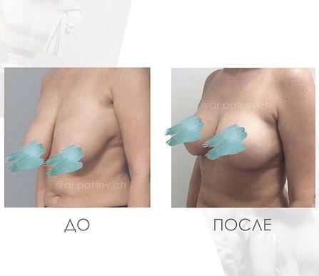 Результат подтяжки груди фото до и после в Клинике Хромова.